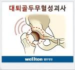 대퇴골두무혈성괴사 고관절 인공관절치환술 필요할까요?