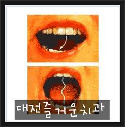 턱관절 장애의 원인과 치료법_대전 턱관절 치료 치과