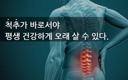 척추측만증운동 10분, 20분 안쓰는 근육까지