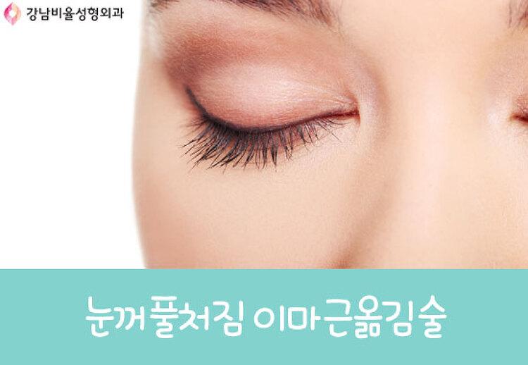 눈꺼풀처짐 이마근옮김술