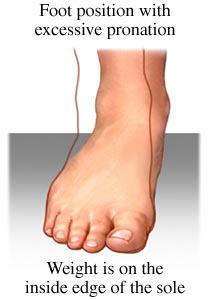 발의 회내